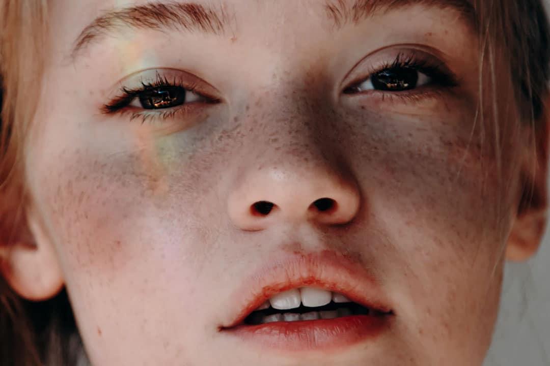 masque grossesse comment traiter soigner faire disparaitre