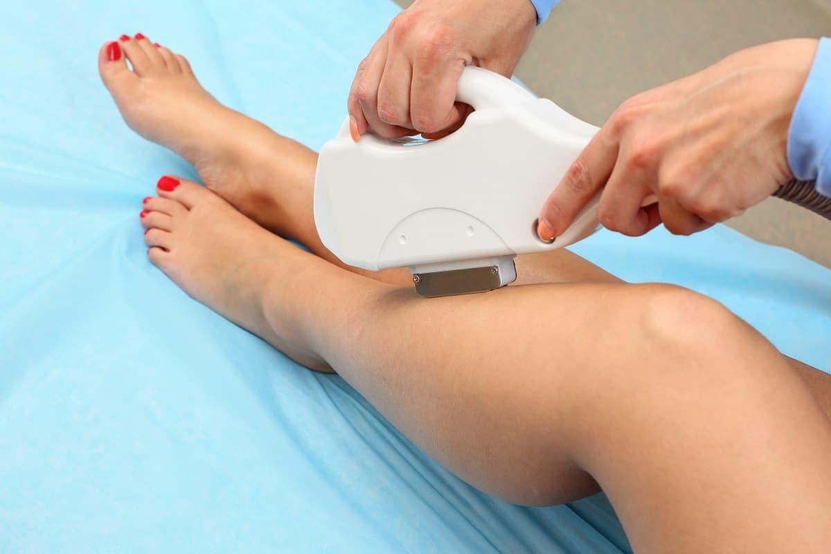 Épilation laser des jambes