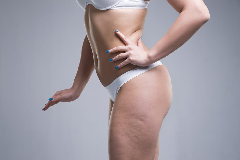perdre-cellulite
